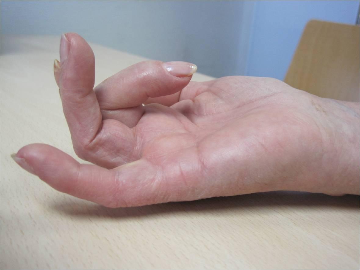 Dedo en resorte. Atrapamiento o salto doloroso del tendón flexor