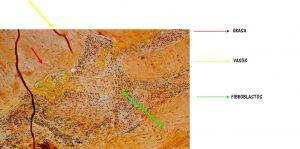 Corte histológico: degeneración angiofibroblástica.