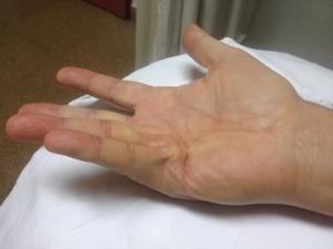 Dupuytren 4º y 5º dedos mano derecha