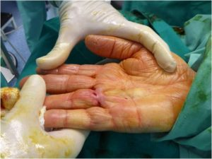 Estiramiento inmediato tras fasciotomia ecoguiada ultrarminimanente invasiva.