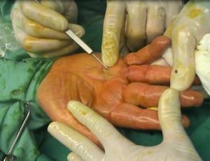 Fasciotomia ecoguiada ultrarminimanente invasiva.