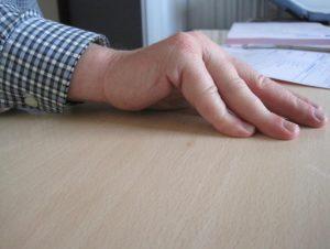 Imposibilidad de estirar la mano sobre la mesa.