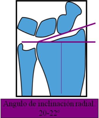 Angulo de inclinación radial