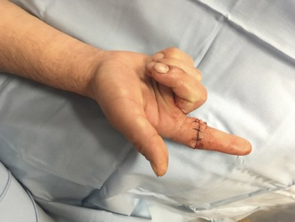 lesiones tendinosas flexoras de la mano