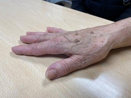 Hiperextensión de la articulación metacarpofalángica del primer dedo