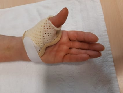 Ortesis funcional  para artrosis base pulgar