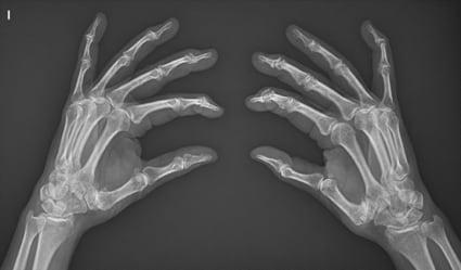 Rizartrosis bilateral de ambas manos- proyección oblicua