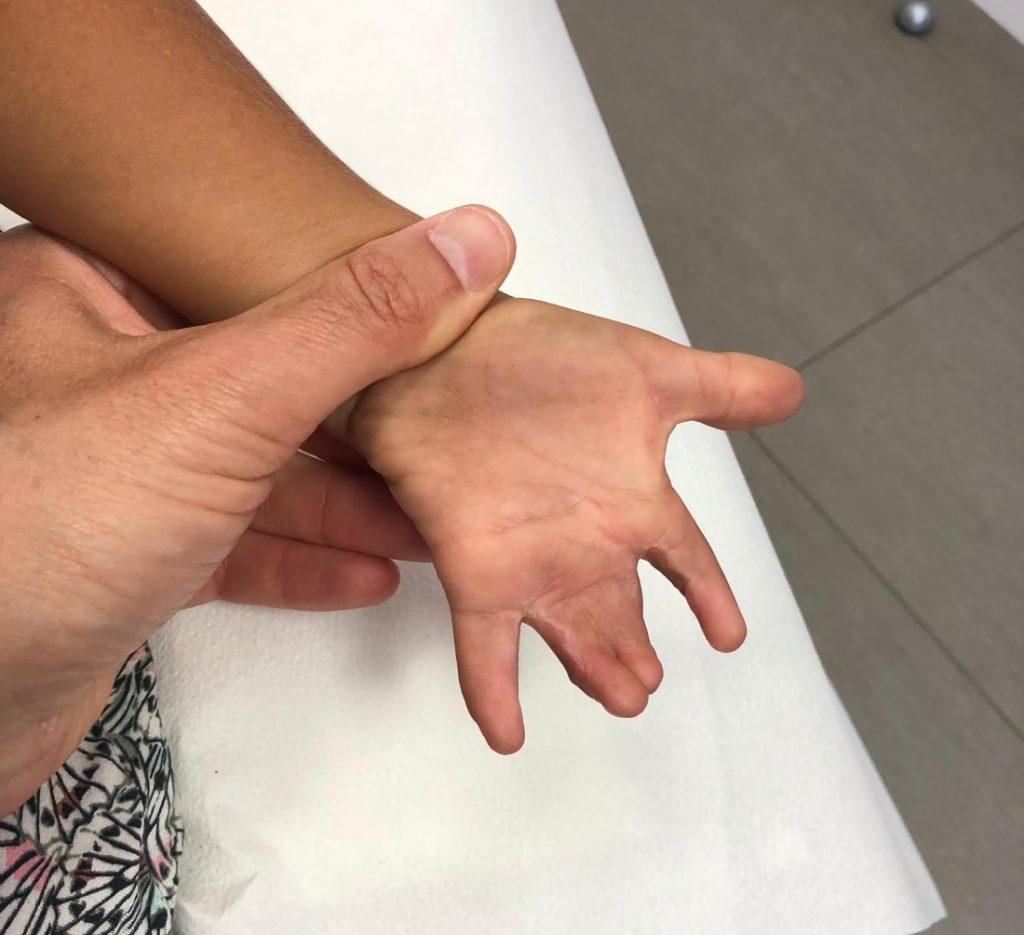 Imagen tras primer tiempo quirúrgico con separación entre 2-3 dedo y 4-5 dedo