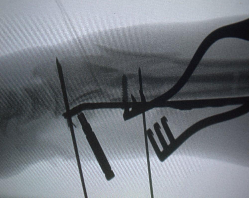 Posicionamiento lateral de placa Aculock 2