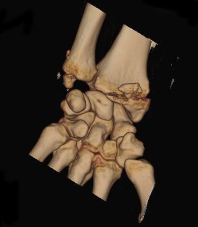 TAC previo a intervención quirúrgica