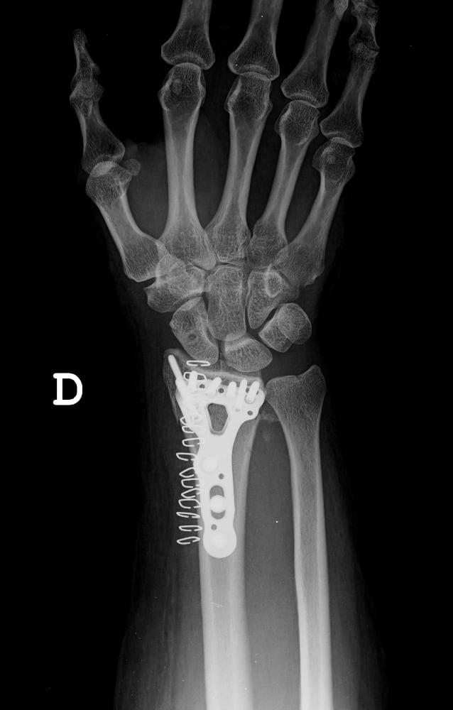 Tratamiento quirurgico con placa Acu-Loc 2 asociado a artroscopia muñeca